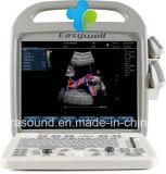 Sistema diagnóstico Ew-C10 do ultra-som portátil com ponta de prova convexa C3r60 e ponta de prova linear L7l40 para o uso humano