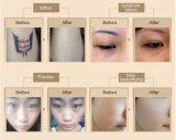 Laser del retiro del tatuaje de la marca del acné de Picolaser del picosegundo (S600)