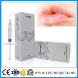 Rétablissement injectable à lèvre liqueur réversible de Reyoungel