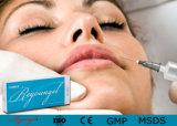 Implantats-Material-u. künstliche Organ-Eigenschaften-Hyaluronic Säure-Hauteinfüllstutzen CER