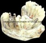 치과 이식 사례 모형 (OSA-2002A)