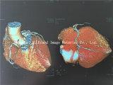 熱い販売! レーザープリンターによる印刷の医学のX線フィルム