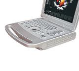 Mindray 보다는 더 싼 휴대용 퍼스널 컴퓨터 색깔 도풀러 초음파