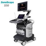 Медицинский передвижной портативный ультразвук серии ультразвука Doppler Sonoscape цвета