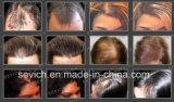 Form-Miniflaschen-Fasern für Haar-Verlust-Keratin-Faser-Gebäude-Haar