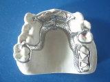 Поставкы Denture зубоврачебной отливки частично в лаборатории Китая зубоврачебной