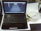 Buona macchina portatile poco costosa di ultrasuono