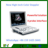 新しくハイテクな携帯用カラードップラー超音波機械(MSLCU26)