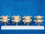 Modèle squelettique d'anatomie médicale lombaire spinale humaine (R020704)