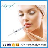가장 새로운 Reyoungel 주사 가능한 Hyaluronic 산 피부 충전물
