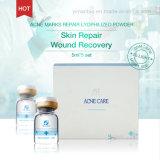 Efecto liofilizado reparación de la reparación del polvo de las marcas del acné buen para la pigmentación y las marcas bajas causadas por Acnes y las espinillas