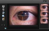 Huvitz、CsoおよびReichertスリットランプのための統合されたビームスプリッターそしてカメラのアダプター