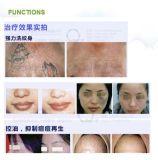 Laser evidente di effetto 1320/1064/532nm per rimozione Mslyl02L del tatuaggio del tatuaggio/laser