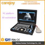 Diagnoseultraschallsystem PC Plattform 10.4 Zoll-Laptop-Ultraschall-Scanner mit konvexer Fühler 3.5MHz Li-Ionbatterie - Maggie
