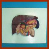 医学の教授のための人間の解剖胆石モデル