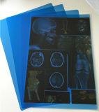Película de raio X azul para a imagem dental