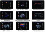 Échographie-Doppler de haute résolution Machine (MSLCU28) de 4D Color