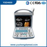 세륨 의학 복부 진단 디지털 휴대용 휴대용 퍼스널 컴퓨터 초음파 스캐너 Ysd4600