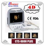 医薬品の獣医の超音波のスキャンナーのポータブルの超音波