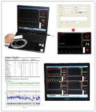 Moniteur d'oxymètre de pouls pour nourrissons Contec Cms-Pn pour ordinateur portable basé sur PC