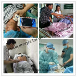 Drahtloser Ultraschall-Fühler-Scanner