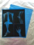 Amostra livre! ! Película de raio X médica/película médica do azul do raio X