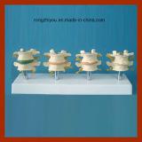 Osteoporosis Hueso humano Modelo Mostrar 4 etapas de la degeneración