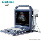 Scanner portatif d'ultrason de machine d'ultrason de couleur de Sonoscape S2 3D 4D des prix portatifs de Doppler