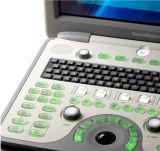 휴대용 4D 색깔 도풀러 초음파 진단 장비/심장 혈관