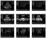 Système ultrasonique de plein de Digitals matériel basé sur PC portatif d'ultrason