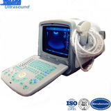 Scanner ultrasonique médical à ultrasons couleur Psuedo