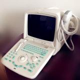Medizinische b-Ultraschall-Maschine mit Cer, ISO 9001, ISO 13485