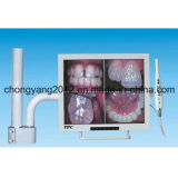 "17 "" BracketのモニタDental Intra Oral Camera"