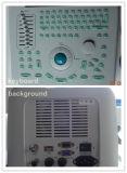 Máquina portable llena del ultrasonido de Digitaces B/W del precio al por mayor