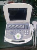 Équipement médical portatif de machine d'ultrason de Digitals (MSLPU28F)