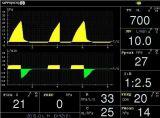 病院ICUの処置の換気装置機械医学の換気装置(PA900b)