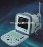 Der preiswerteste Laptop-Ultraschall-Scanner mit konvexem Fühler Ysd1308A