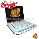 3D Portable Ultrasound Machine/Handheld USG Machine/Ultrasound Handheld Mslpu34A