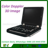 Colorir a máquina avançada portátil do ultra-som de Doppler