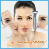 La mejor cicatriz del acné del OEM 2015 Anti-Mancha la crema del tratamiento del acné del retiro de la peca