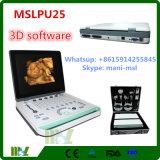 2016 최신 싼 3D 휴대용 휴대용 퍼스널 컴퓨터 초음파 스캐너 (MSLPU25)