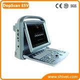 Beweglicher Veterinärfarben-Doppler-Ultraschall (DopScan E5V)