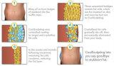 Тело безопасности уменьшения Cryolipolysis тучное контуря Slimming медицинское оборудование