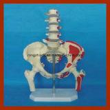La lumbar pelvis y fémur con Cinco modelo médico