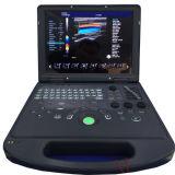 Altamente custo - cor portátil médica eficaz Doppler da máquina do ultra-som