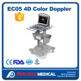 A todo color Doppler por ultrasonido digital Equipo de diagnóstico portable Doppler color Eco5