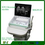 Machine avancée Mslpu25A d'ultrason de la configuration 3D