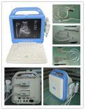 Scanner portatif neuf d'ultrason d'écran LCD (affichage à cristaux liquides d'AJ-6100B)