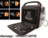 Color Handheld Doppler del fabricante 3D 4D del equipamiento médico