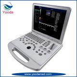 Tipo cor Doppler do trole da máquina do ultra-som do equipamento médico
